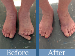 Before & After Bunion Surgery