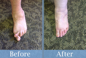 Before and After Bunion Surgery