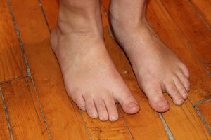 Potential Causes of Foot Drop
