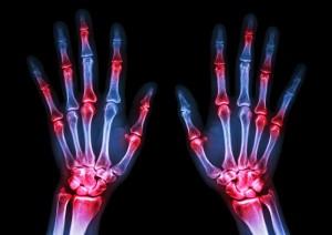 Arthritis pain.
