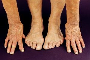 How arthritis affects your feet