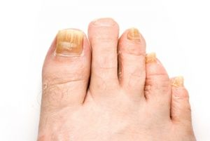 Fungal Toenails Treatment in the Bloomington, IN 47404; Bedford, IN 47421; and Washington, IN 47501 areas